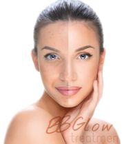 BBGlow Treatment